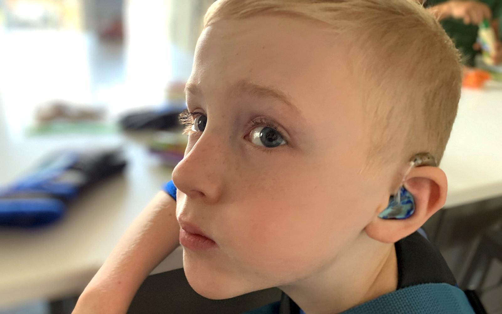 MHFV_Blog_Lions_Clinic_Rory_Hearing_Loss